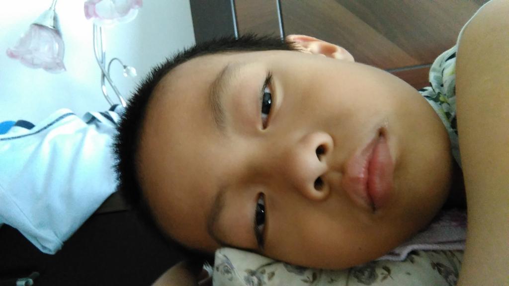 男孩子,8岁6个月,从小趴着睡,眼睛闭不严.最近半年早起口臭,大便干.