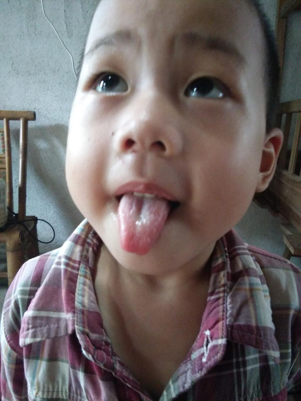 宝宝经常感冒,喉咙发炎,扁桃体发炎,脖子有淋巴结 这次从5月份18
